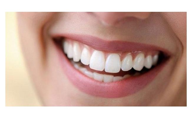 Dişlerin çürümesini engelleyen 10 altın kural