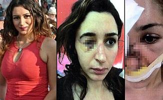 Genç kadın vahşet yaşamıştı! İstenen ceza belli oldu